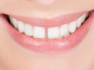 Zahnlücken schließen mit Präprothetischer Chirurgie